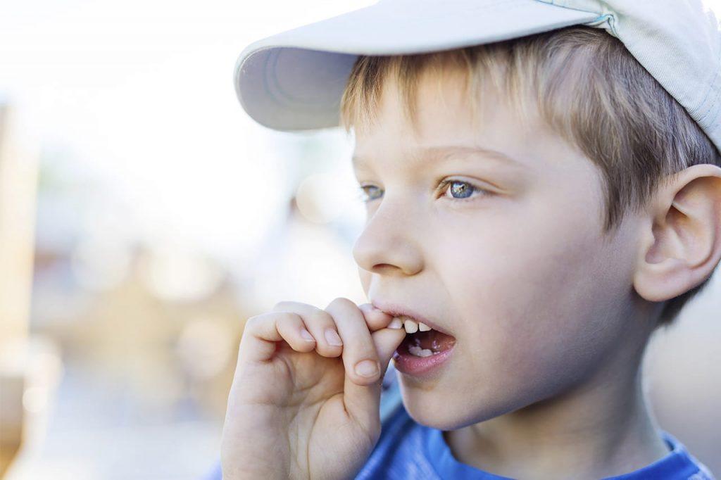 no quitar los dientes flojos - clinica dental maria gomez palacios cartaya huelva